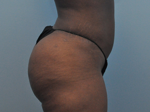 Brazilian Butt Lift Patient 1 After Image