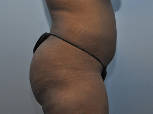 Brazilian Butt Lift Patient 1 Before Image