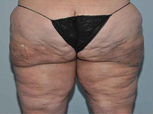 Lipedema Patient 1 After Image