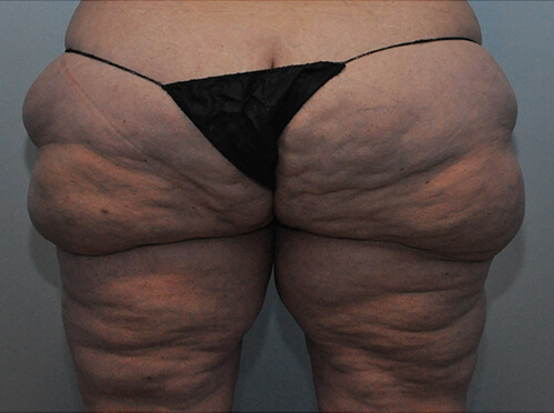 Lipedema Patient 1 Before Image