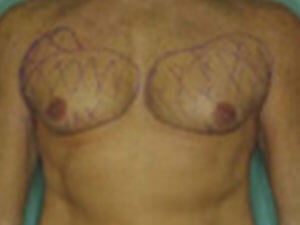 Male Chest Patient 1 Before Image
